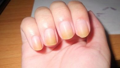 How to Get Rid of Yellow Nails - 10 Best Home Remedies