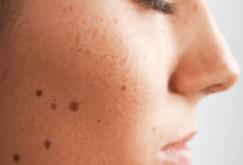 How to Get Rid Of Brown Spots on Skin - Best Home Remedies