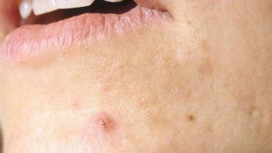 10 Natural Home Remedies to Get Rid of Cystic Acne Fast