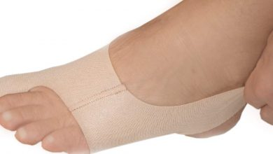 How to Get Rid of Bunions Fast (Without Surgery)