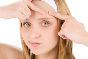 How to Get Rid of Forehead Acne Overnight - Causes and Treatment