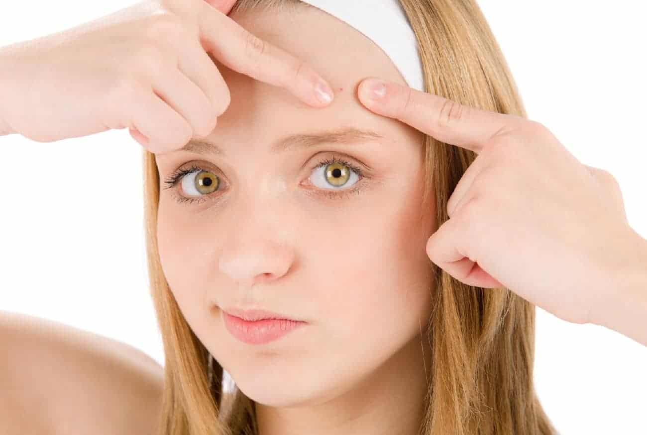 how to get rid of forehead acne overnight: causes and treatment