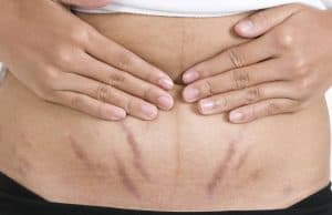 How to Get Rid of Stretch Marks on Men - Best Home Remedies