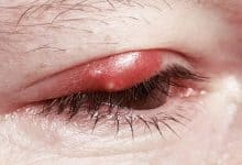 How to Get Rid of a Stye - 10 Treatments and Home Remedies