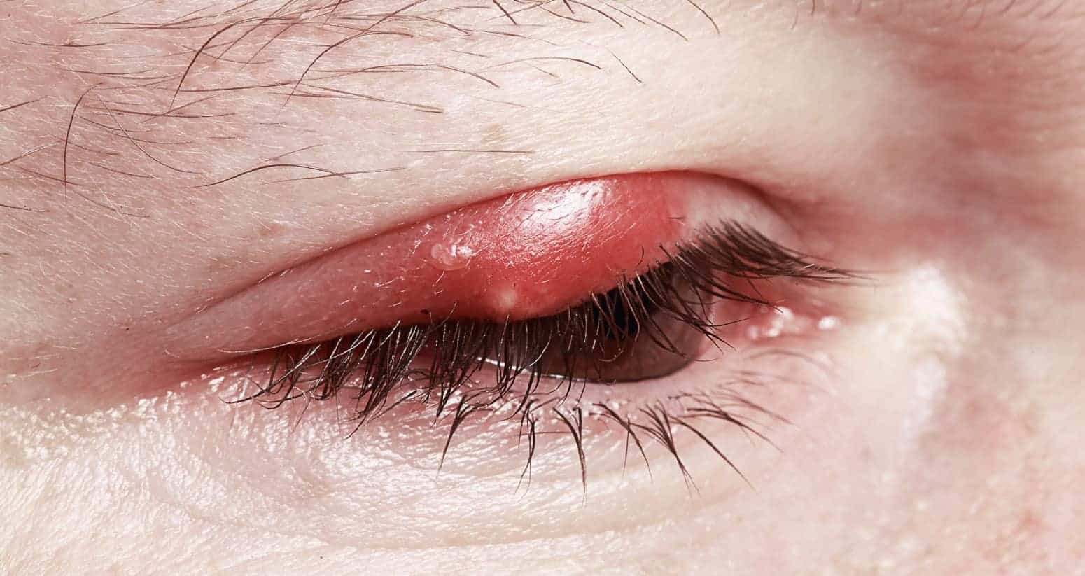 How To Get Rid Of A Stye 10 Treatments And Home Remedies