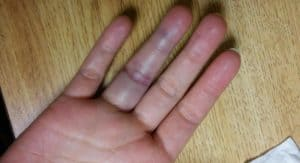Jammed Finger - Symptoms, Treatment and Home Remedies