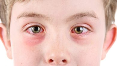 Pink Eye (Conjunctivitis) - Causes and Best Home Remedies