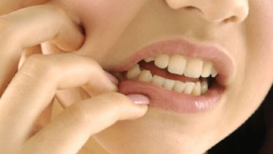 Wisdom Tooth Pain Causes, Treatment and Best Home Remedies
