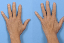 Blue Veins in Hands Suddenly – Common Causes and Home Remedies