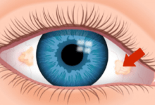Brown Spots on Eye - Causes, Treatment and Best Home Remedies