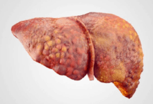 Cirrhosis of the Liver - Symptoms, Stages and Life Expectancy