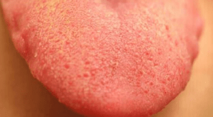 Yellow Tongue - Causes, Treatments and Best Home Remedies